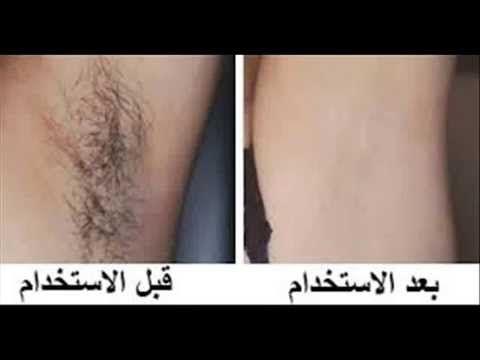 افضل طريقة لازالة الشعر من المناطق الحساسة للنساء بدون الم