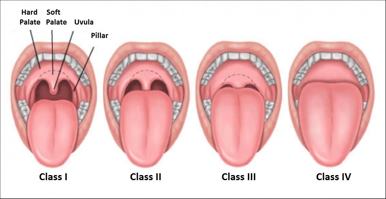 hight resolution of swollen uvula