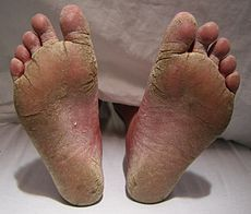 Best Rated or reviewed Athletes Foot Treatments