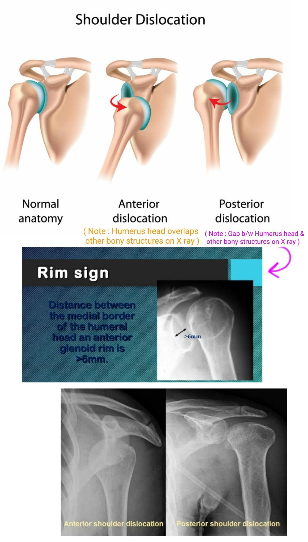 Anterior vs Posterior Shoulder dislocation on X ray ...