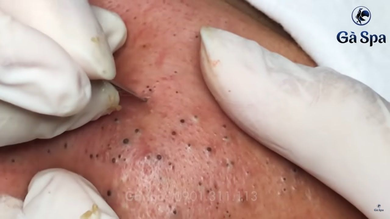 Best compilation of blackheads in December 2019  Tổng hợp những pha nặn mụn hay nhất trong t