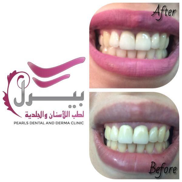 تم تغيير تركيبات زريكون قديمة بتركيبات الايماكس للاسنان الامامية لدى د نادر الراوي Naderalrawi Dental Clinic Pearls