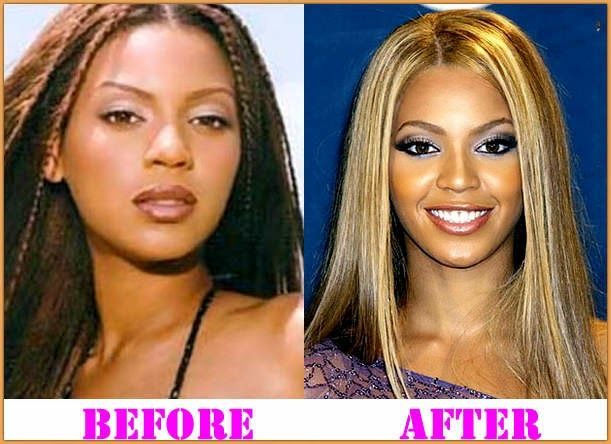 star plastic surgery before and after: Beyonce Plastic Surgery Before and After