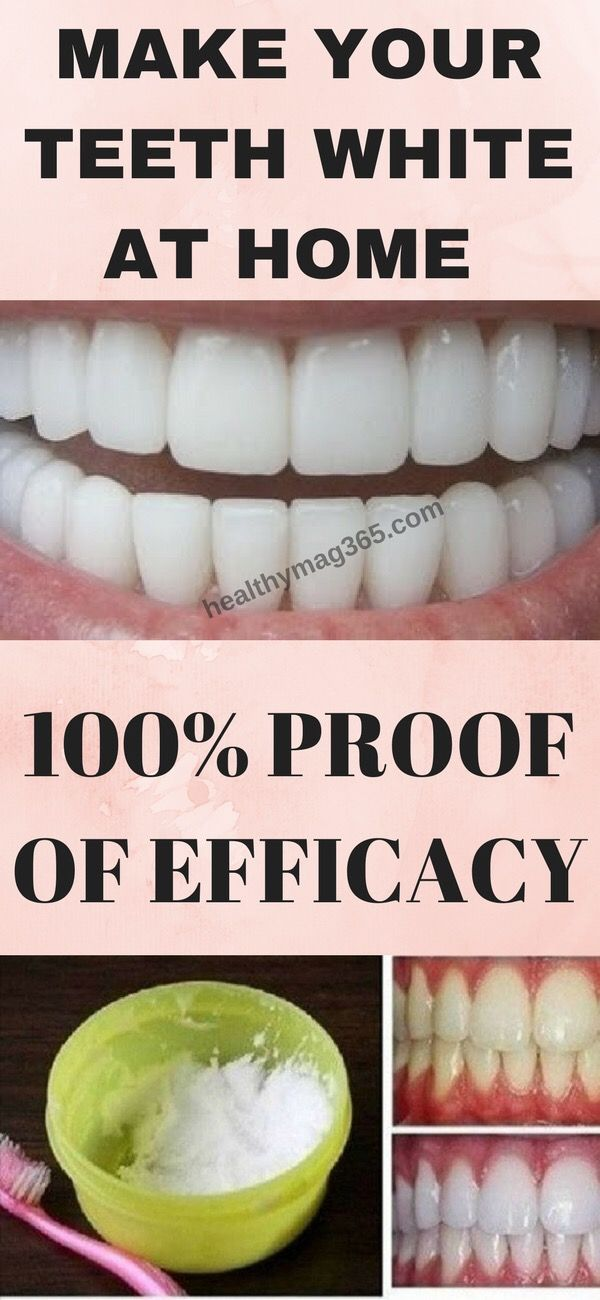 57de46da83c3acdb3739f06b2e6ed016 - How To Get Rid Of Tooth Pain After A Filling