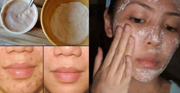 Resultado de imagen para aplicacion de cremas cara acne