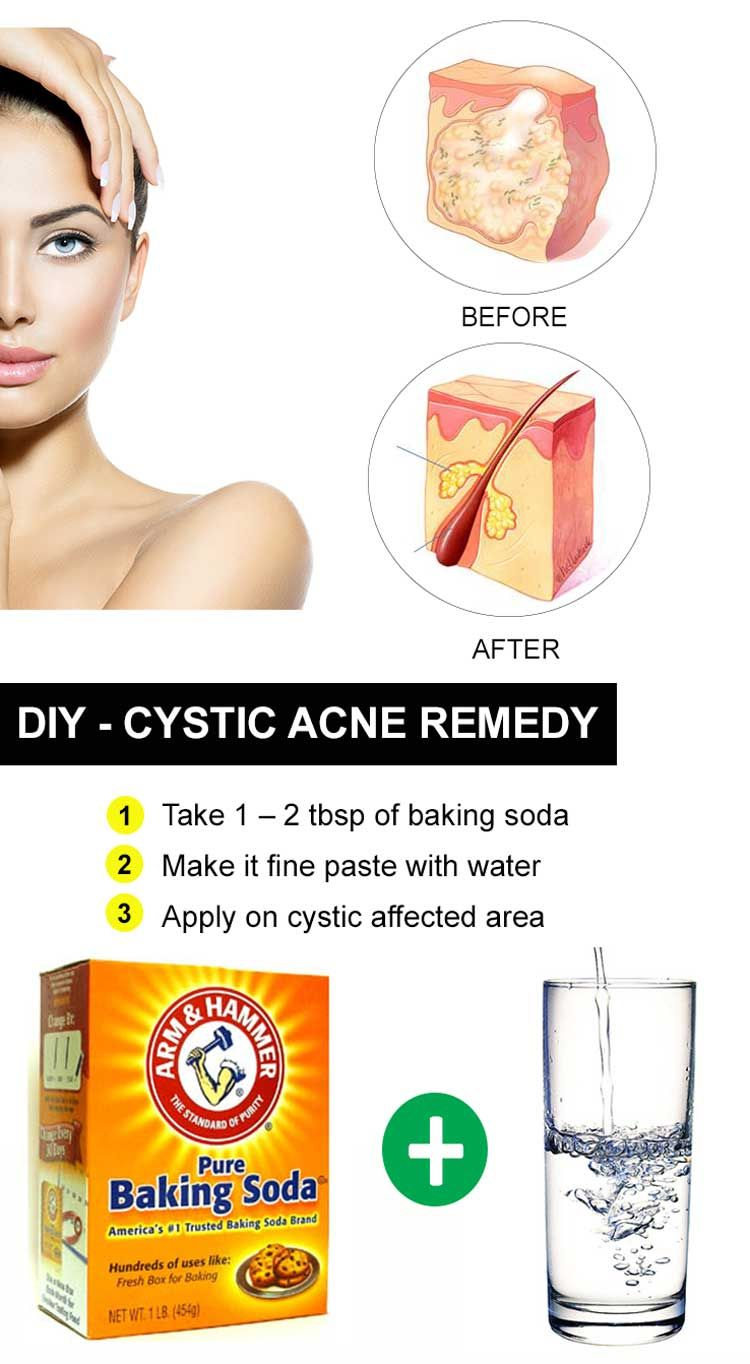 13 Surprising Home Remedies For Acne Cystic Acne Remedies Cystic Acne Treatment Acne Cure