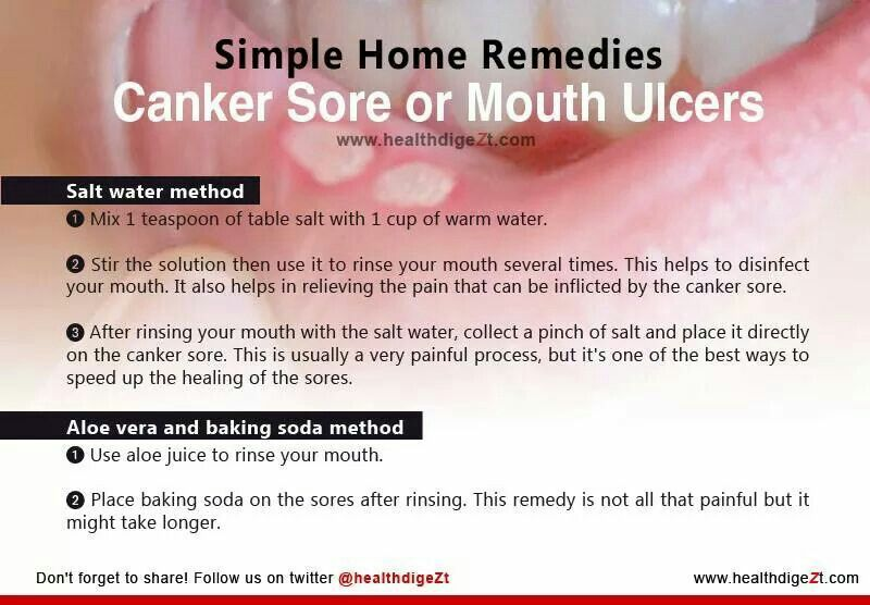 Home Remedies For Canker Sores Or Mouth Ulcers Mouth Sores
