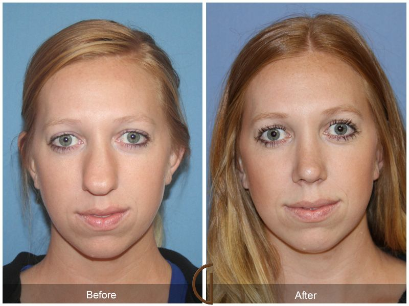 alar skin graft rhinoplasty Google Search Nose surgery
