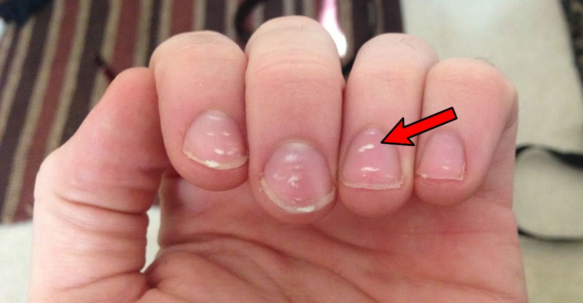 If You See These White Spots On Your Nails You Should See A Doctor Immediately White Spots On Nails White Marks On Nails White Spots On Toenails