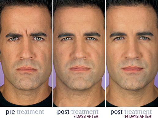 Botox For Men Botox Plastic Surgery Aging Skin Care