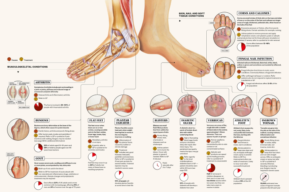 Identifying common foot conditions | Infographic | Pharmaceutical Journal