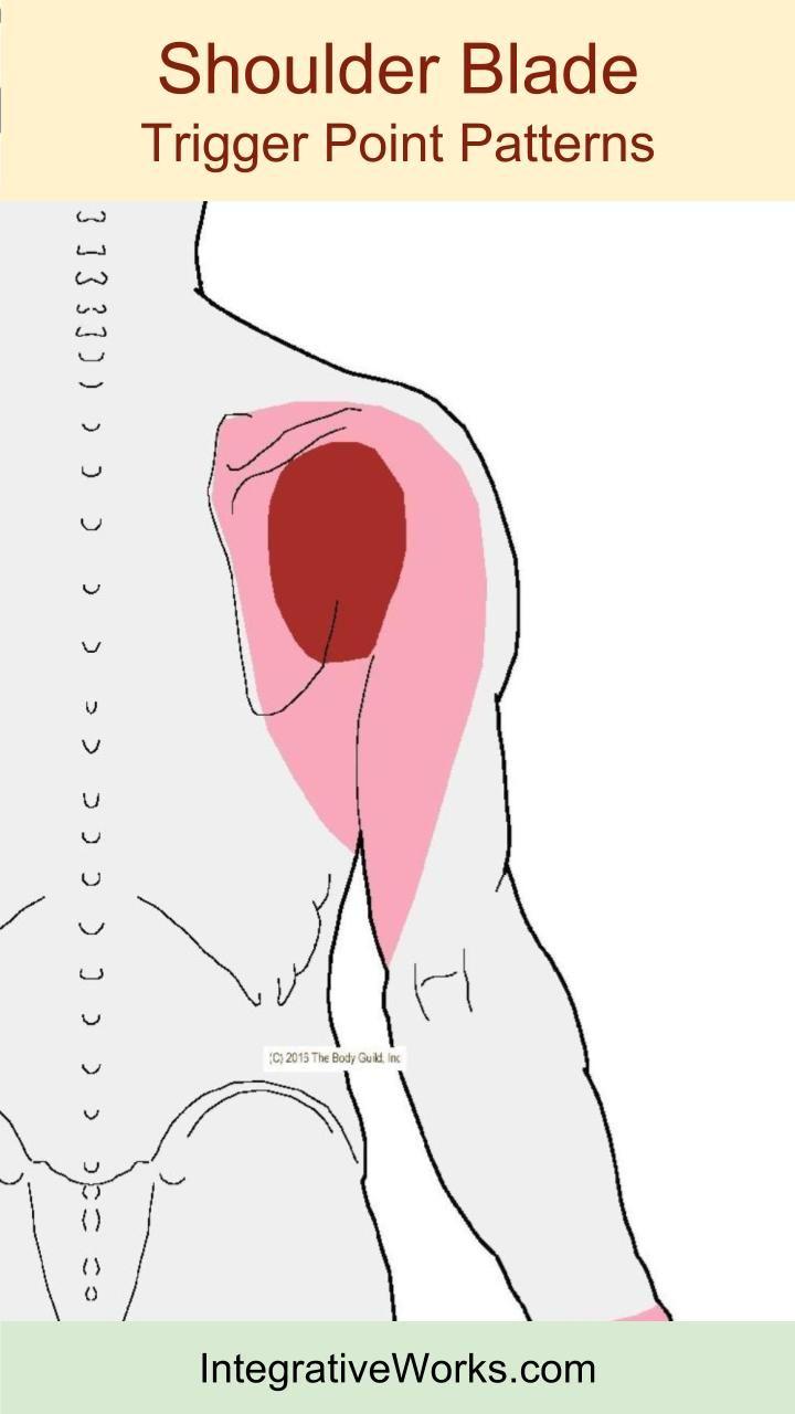 Schulterblatt Schmerzen Links