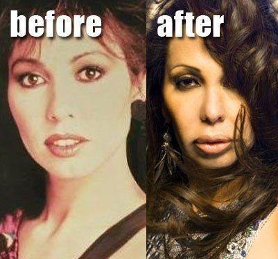 Visit For More Jennifer Rush 22 Most Shocking Celebrity Before And After Plasti Celeb Plastische Chirurgie Prominente Plastische Chirurgie Fettabsaugung