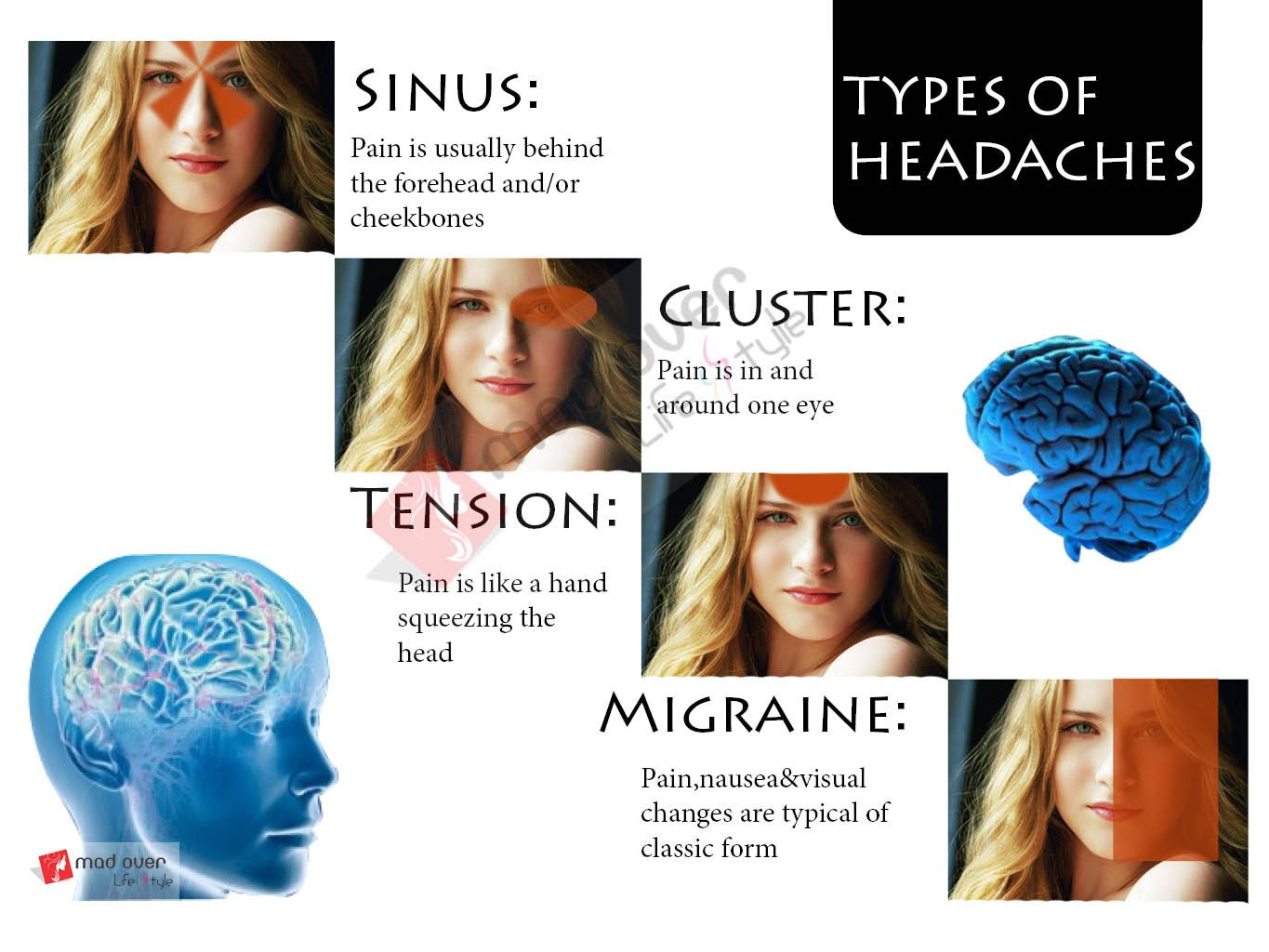 Prime Types Of Headaches Sinus Pain Is Usually Behind The Forehead And Short Hairstyles Gunalazisus