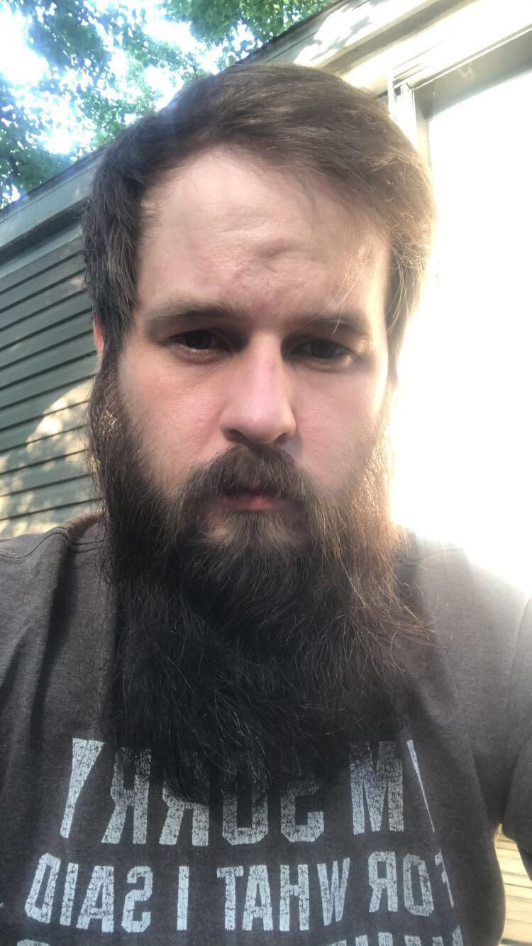 Okay Reddit You Decide My Hair Is Thinning Badly Up Top Thanks To The Beard I Think Im Confident Enough Hairstyles For Thin Hair Hair And Beard Styles Beard