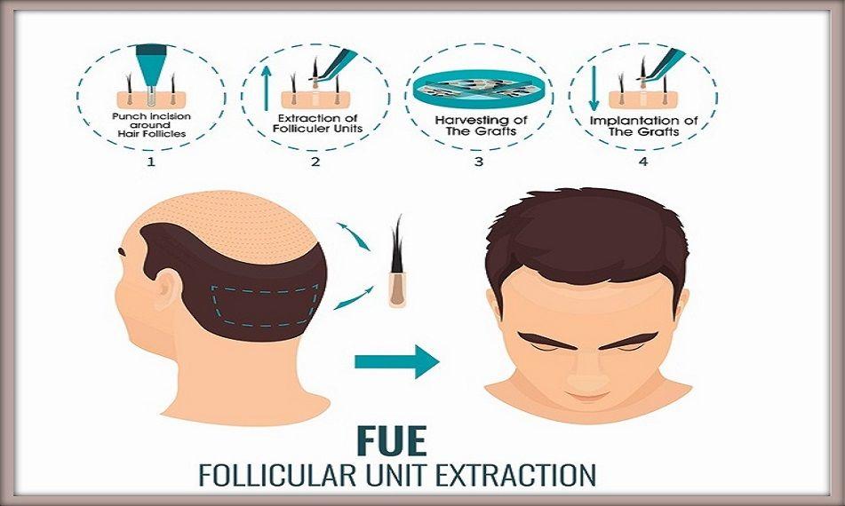 FUE Hair Transplant in Pune Gallery