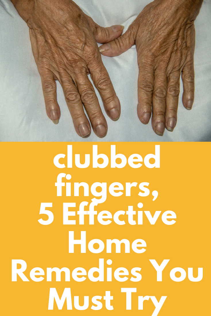 clubbed fingers, 5 Effective Home Remedies You Must Try