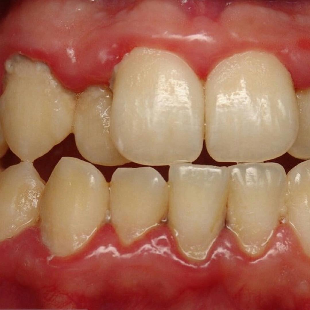 التهاب اللثة هو المرض الثاني الأكثر شيوعا بعد تسوس الأسنان أعراضه 1 انتفاخ اللثة 2 احمرار اللثة 3 نزيف ال Hiring Now Local Jobs Hiring Dental Assistant