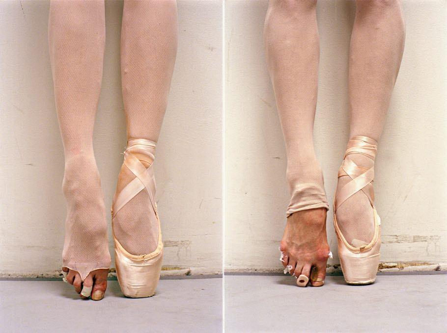 Pin auf ugly ballerinas feet