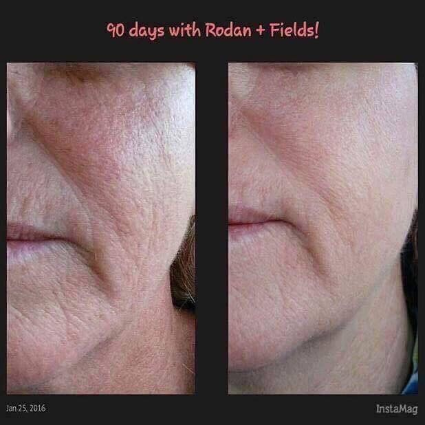 "People sometimes ask…..""Do those R+F products really work or are the pictures touched up?""    THEY WORK!  We don't post touched up pics.  We don't need to.  Here is a perfect example of how real the results are. Look at the difference in the texture, pore size and brightness.  Her skin has CHANGED.    Imagine the results after using the products for a year.  AGING BACKWARDS!!   Changing Skin and Changing Lives!!!  That's what I do…and I love it!  You ready?"