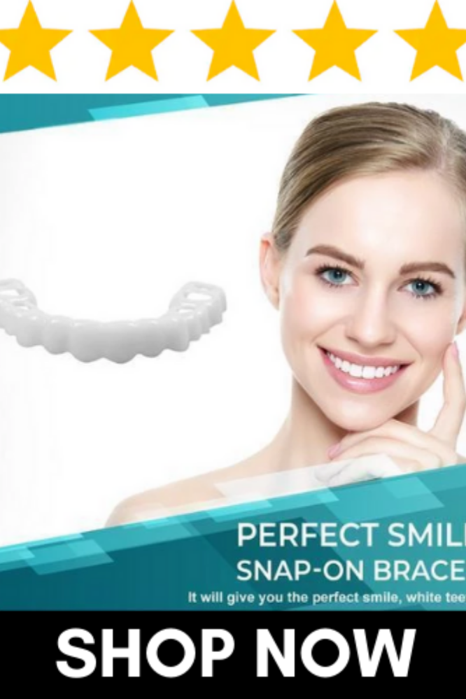 Perfect Smile SnapOn Braces (With images) Perfect smile