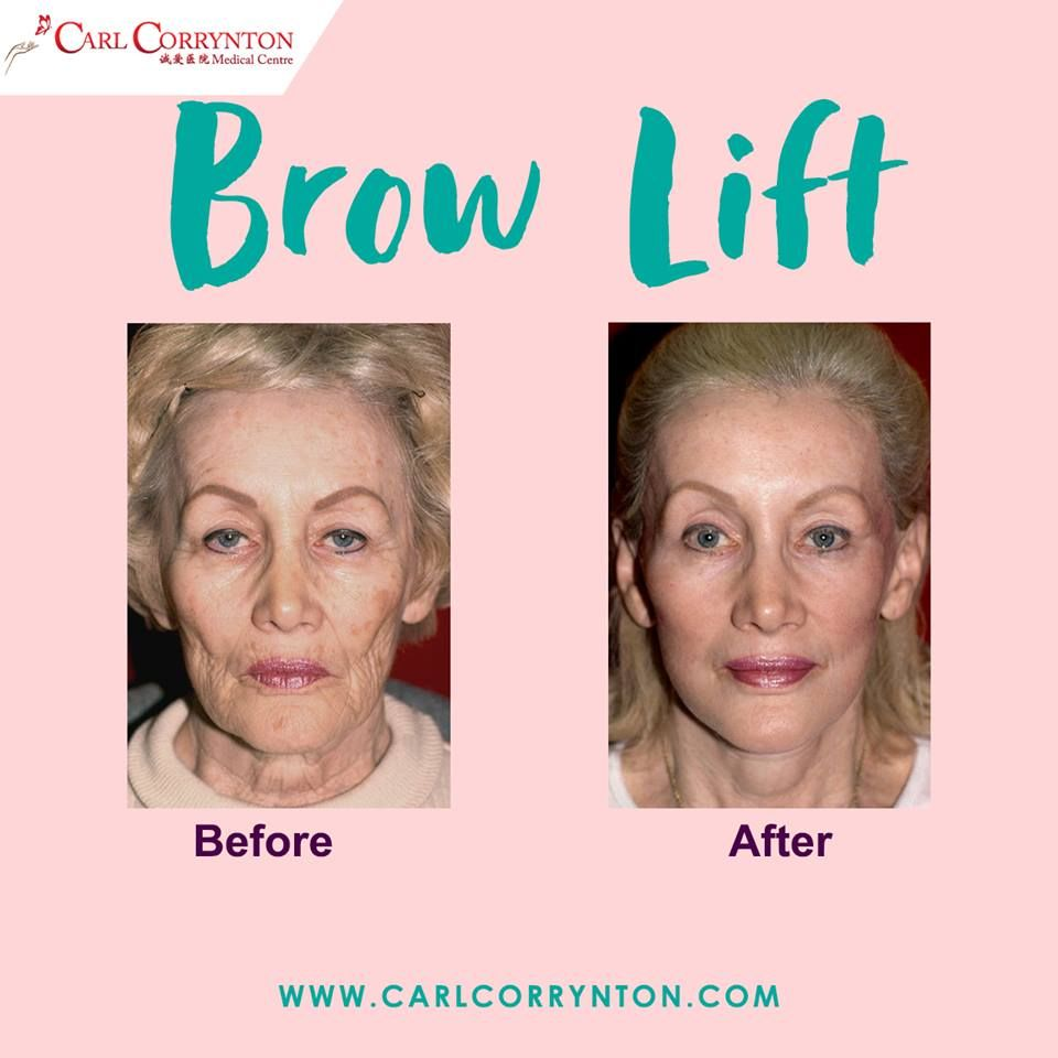 Fabulous result of brow lift, neck lift, face lift, facial
