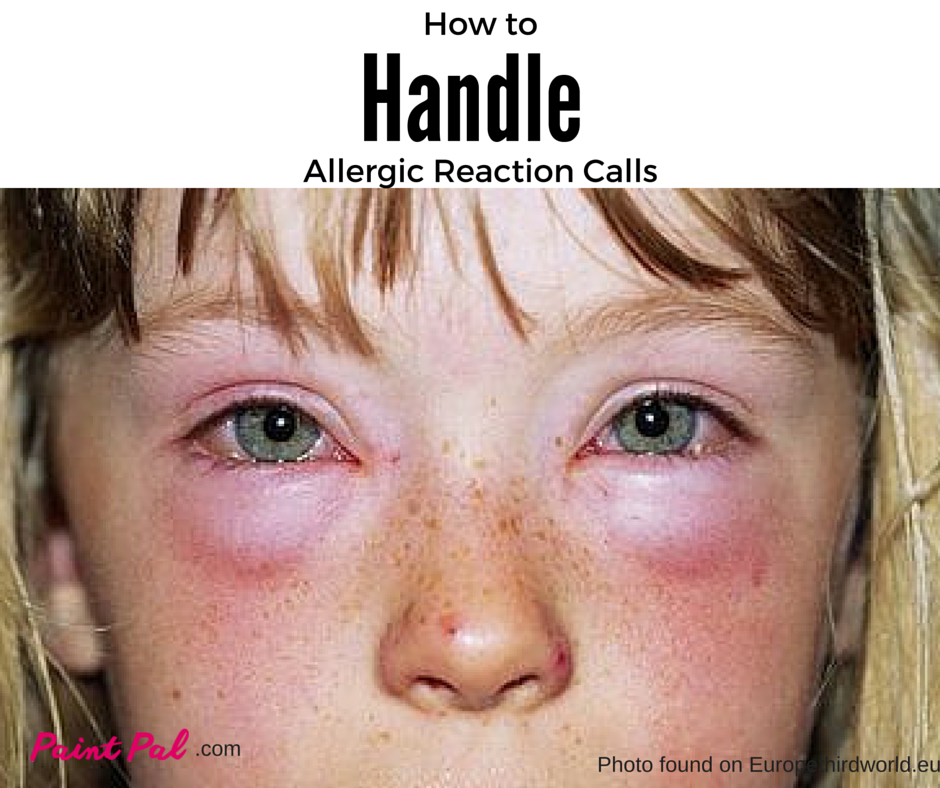 How to Handle an Allergic Reaction Call Face allergic