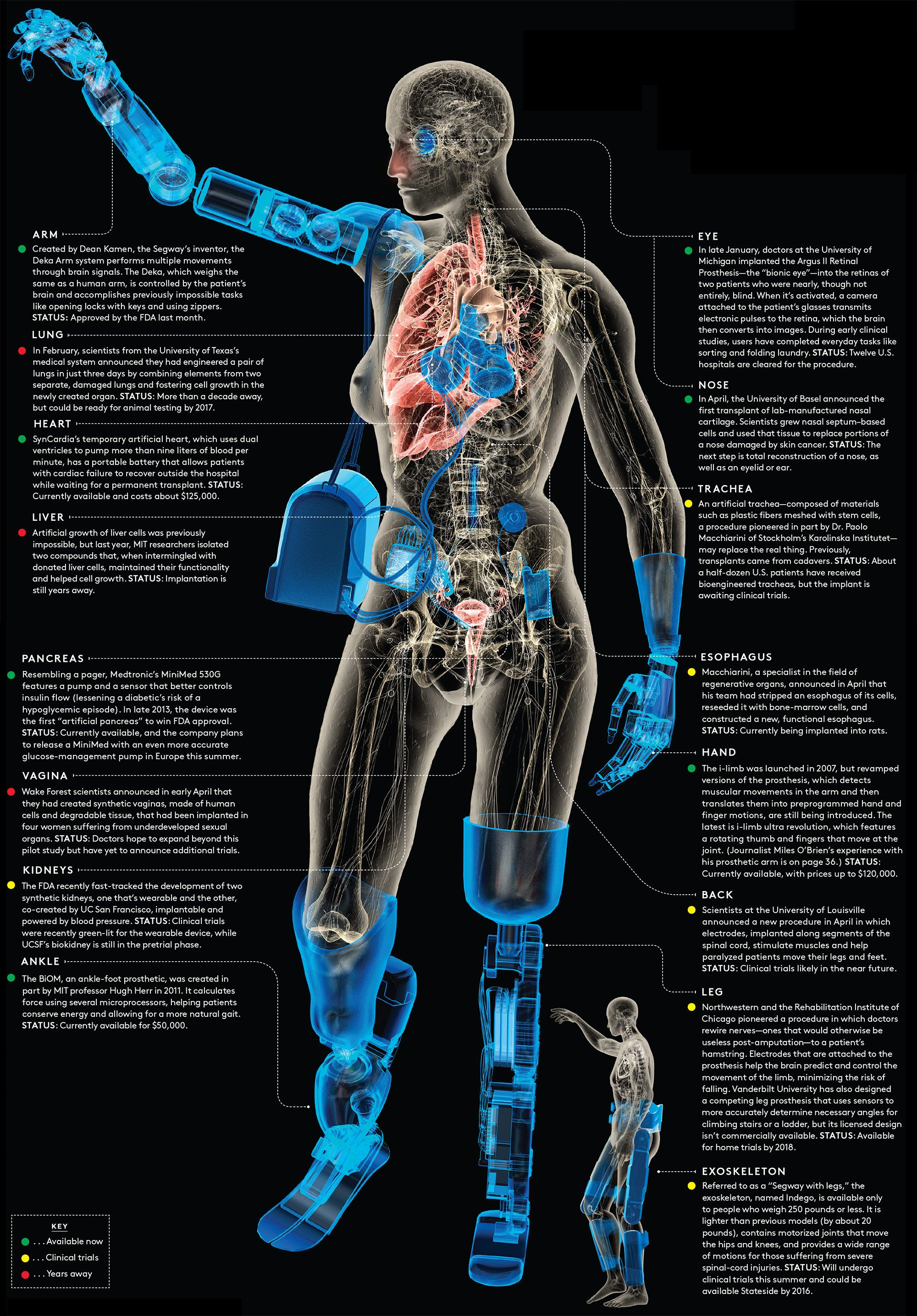 Pin On Bionics Prosthetics Robotics