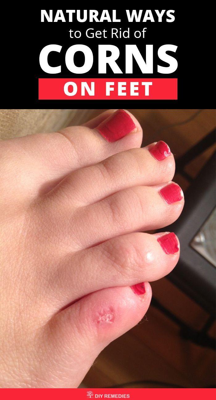581a5a9db8da5098627407432683c023 - How To Get Rid Of Callus On Toes Permanently