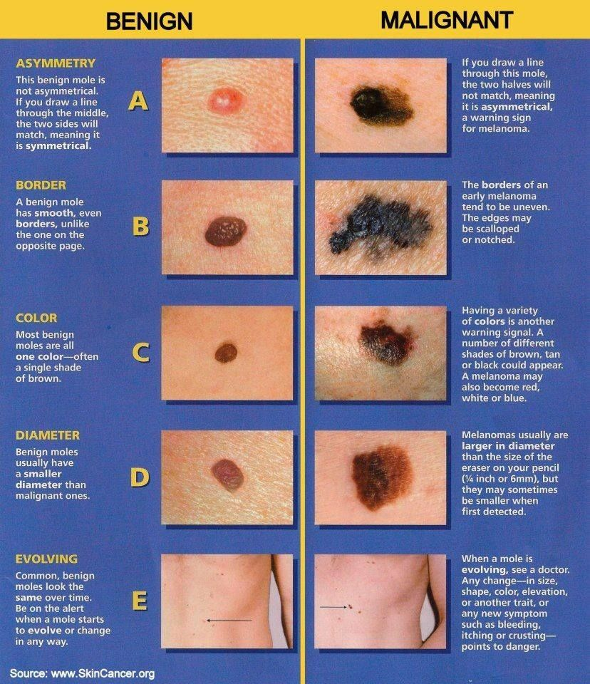 best images about dermatology sebaceous cyst 17 best images about dermatology sebaceous cyst skin cancer and decision tree