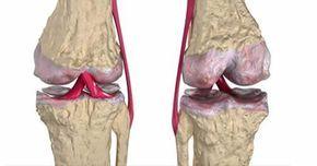 Questo rimedio aiuta ad alleviare i dolori articolari..