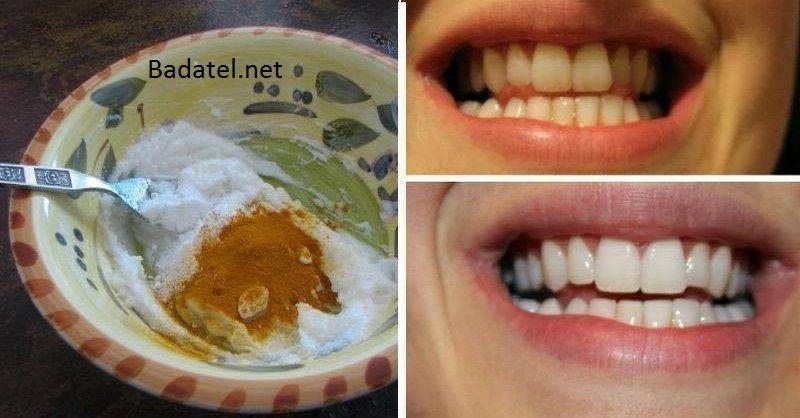Chcete mať krásne biele zuby a zároveň sa zbaviť bolestí, opuchov ďasien či zlého zápachu? Potom je táto domáca zubná pasta presne pre vás.
