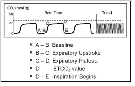Capnography Waveforms | Arterial to End Tidal CO2 Gradient