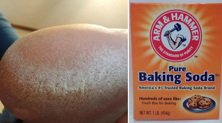 Soaking Your Feet in this Miracle Baking Soda Mixture 2 Times a Week Heals Cracked and Dry Feet! - http://nifyhealth.com/soaking-your-feet-in-this-miracle-baking-soda-mixture-2-times-a-week-heals-cracked-and-dry-feet/