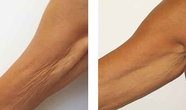 eliminar celulitis en los brazos