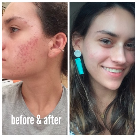 My Accutane Journey Dealing With Severe Acne Accutane Severe Acne Acne Remedies
