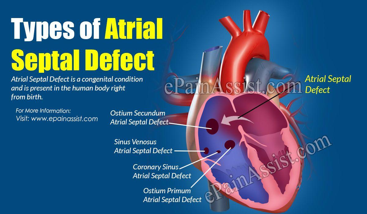 Types of Atrial Septal Defect: It's Causes, Symptoms ...  Sinus Venosus Asd