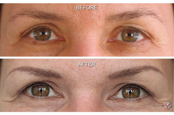 dccdce87d Before After Photos Of Microart Semi Permanent Makeup For Eyebrows Eyeliner  An Alternative To Eyebrow Tattooing