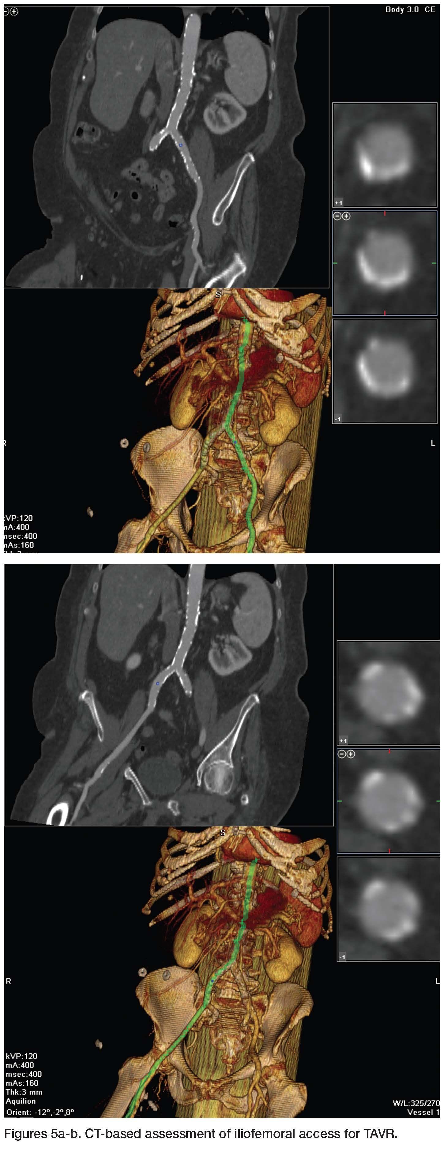 Pin on cardiac catheter laboratory ccl nursing