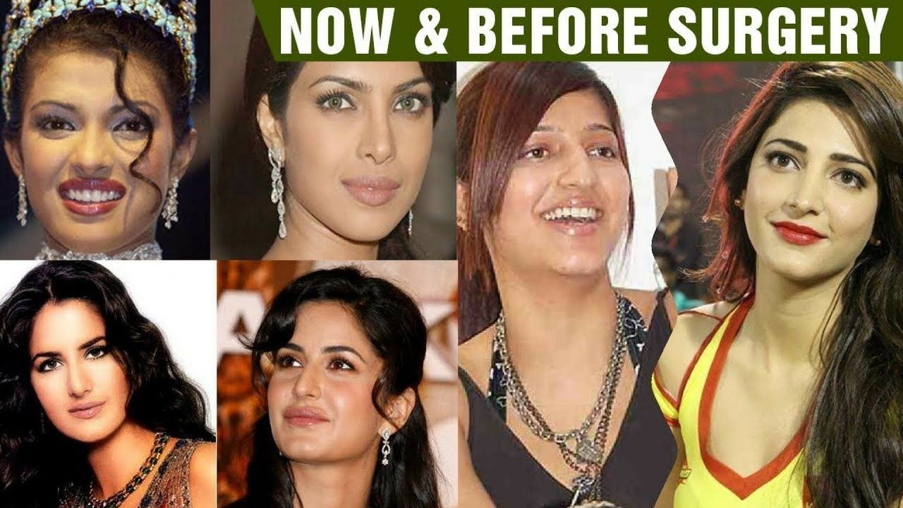 10 bollywood actresses plastic surgery before and after with