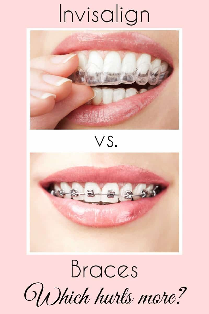Fascination About Invisalign Vs Braces
