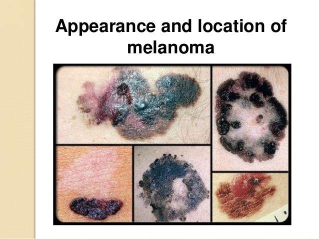 Distribution of Skin Melanomas Men on their back -- PPT de
