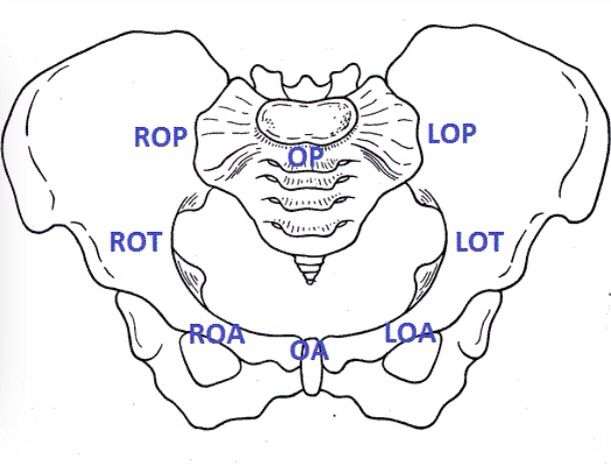 Baby Positions In The Womb Mapped Out On The Pelvic Bone Based On