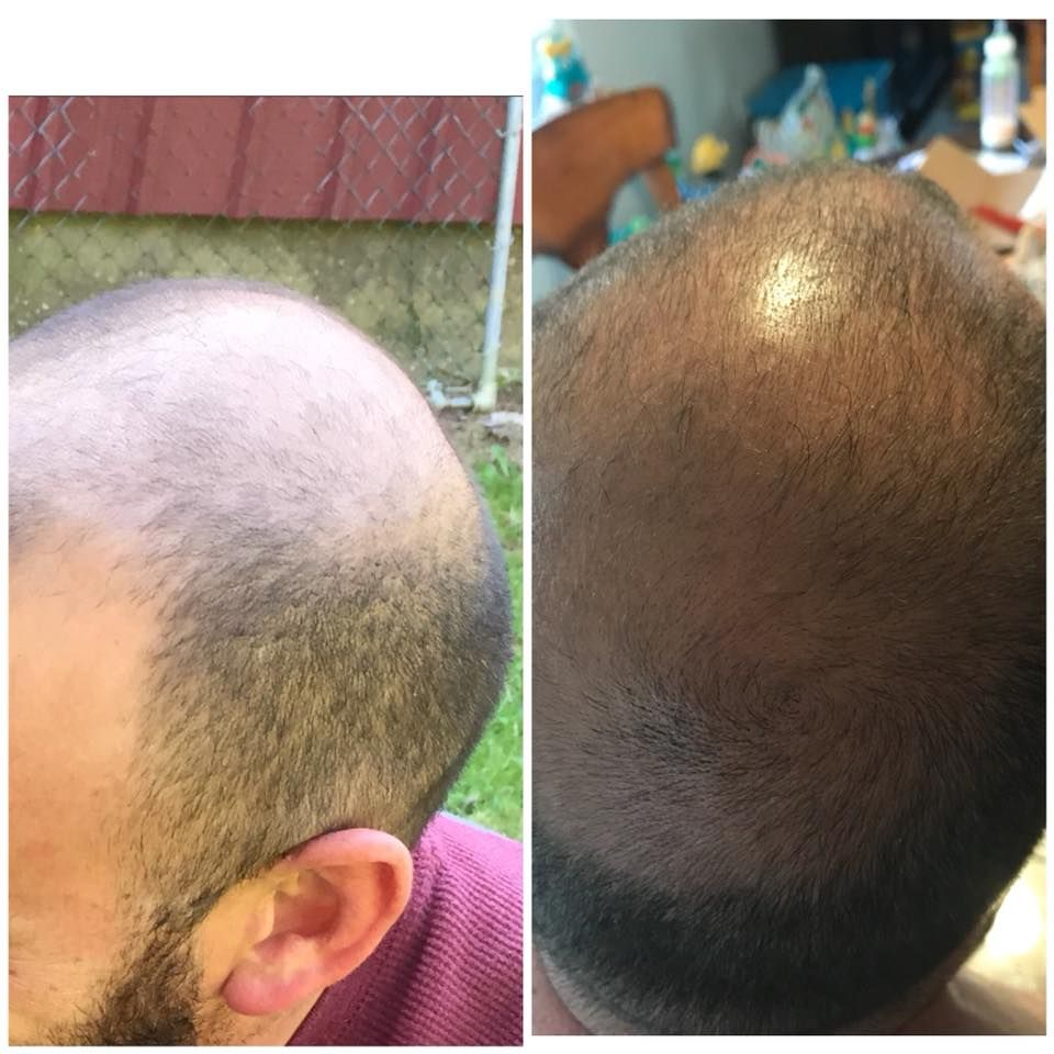 Balding? Losing your hair? Want thicker lashes and brows? People