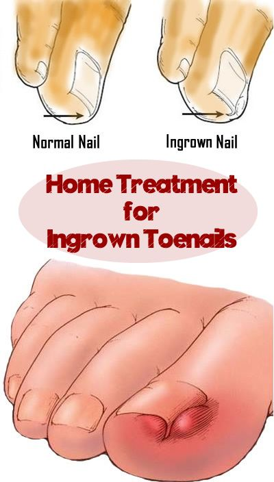 Cotton or gauze under nail relieves ingrown toenail pain and ...