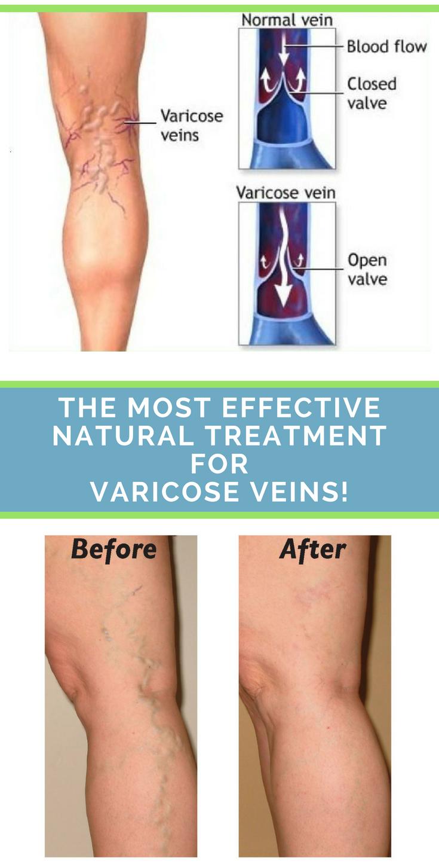natural vein treatment