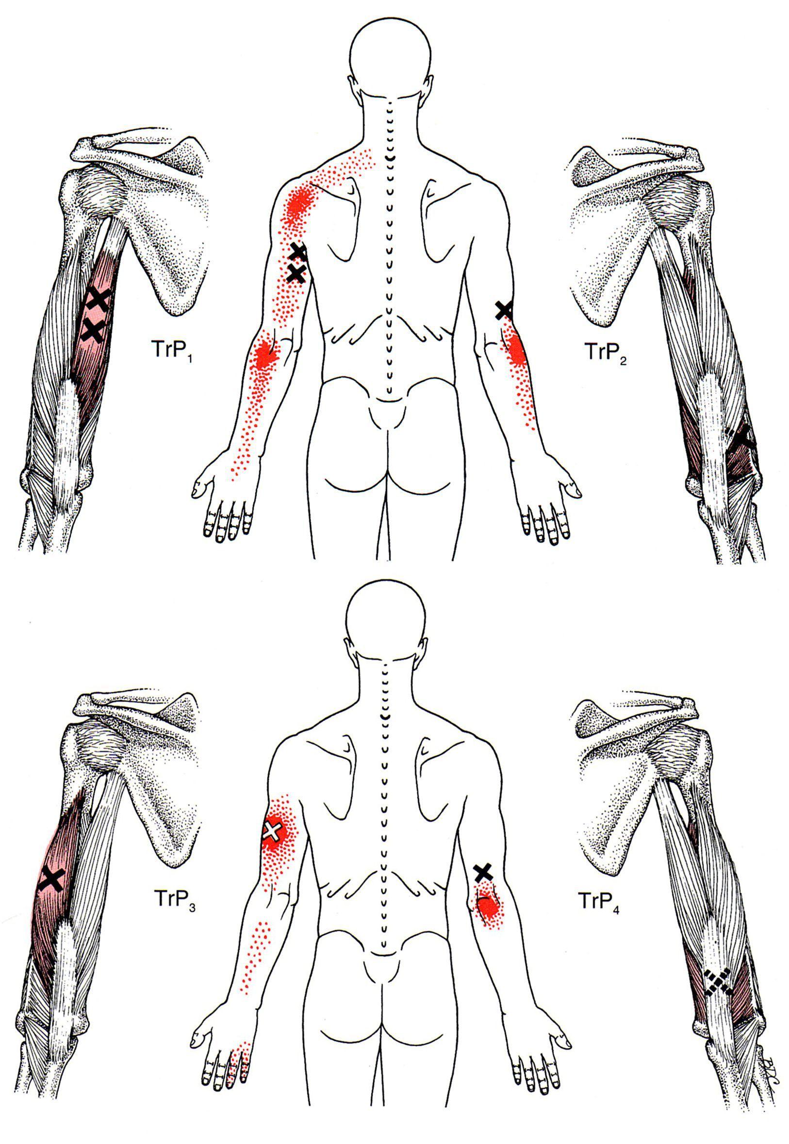 Pain Diagram Back