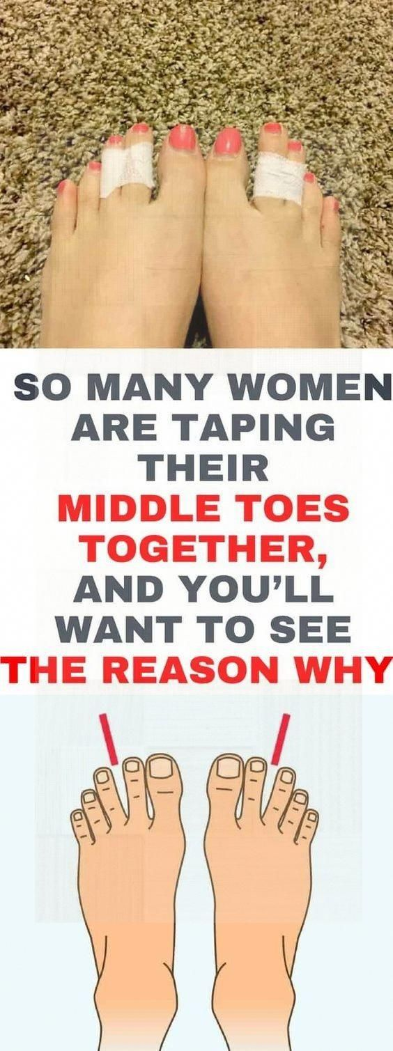 So Many Women Are Taping Their Middle Toes Together And You?ll Want To See The Reason Why! #health #...