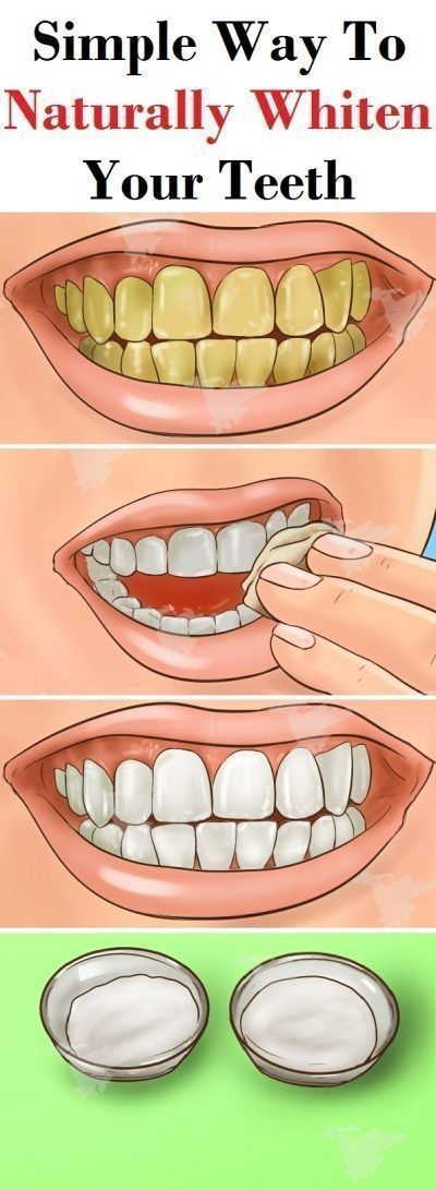 Whiten Teeth Naturally How To Whiten Teeth Naturally Overnight How