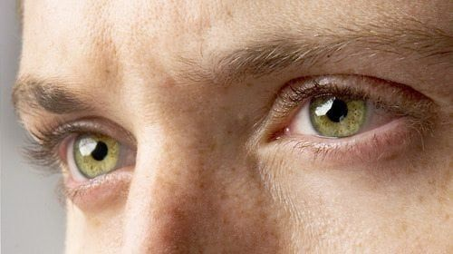 Green Eyes: Learn Why People Who Have Them Are So Unique! | Guy Counseling